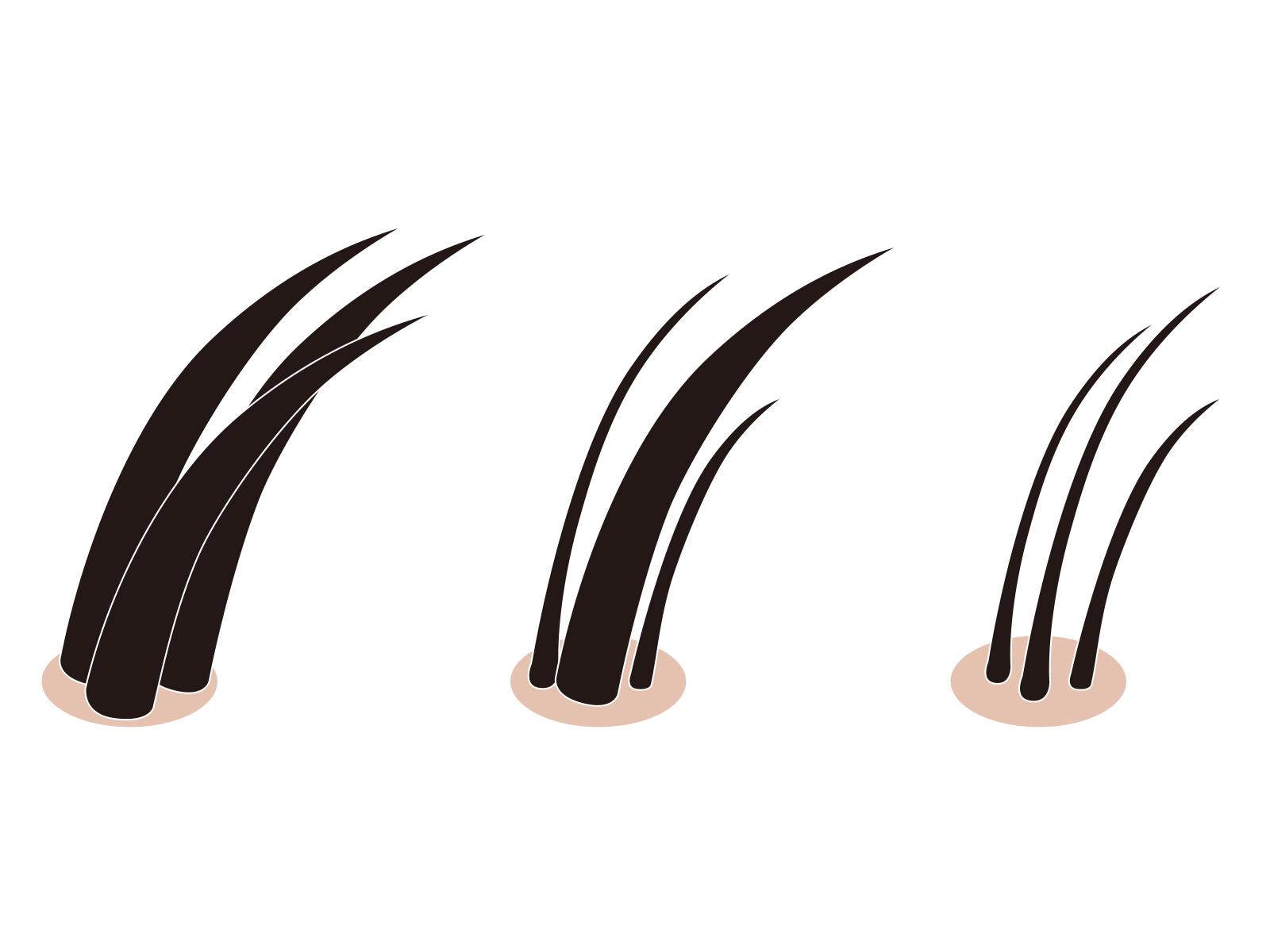 山口県周南市 薄毛・抜け毛に悩む人の上手な育毛剤の選び方サムネイル