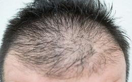 髪の毛のハリやコシがなくなる原因サムネイル